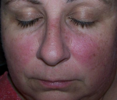 Lupus Butterfly Rash Pictures