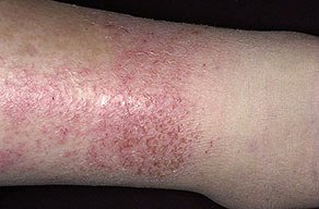 photos of Stasis Dermatitis