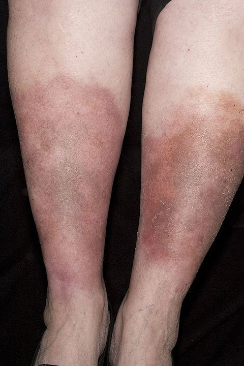 Stasis Dermatitis | National Eczema Association
