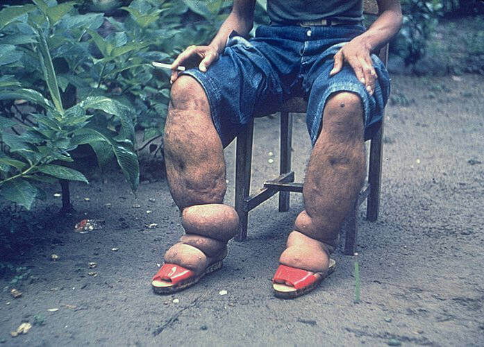 elephantiasis pictures