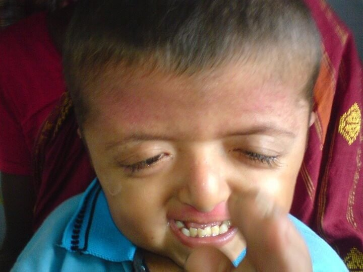 Pictures of Apert Syndrome