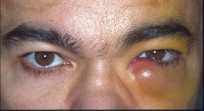 swollen tear duct adult