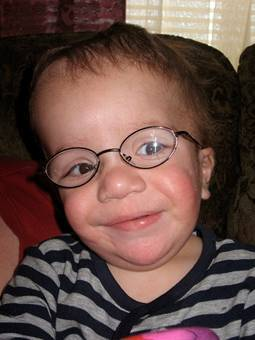 Dandy Walker Syndrome Symptoms Causes Diagnosis And