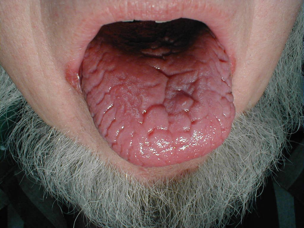 glossitis - definition ,symptoms ,causes ,diagnosis and treatment, Skeleton