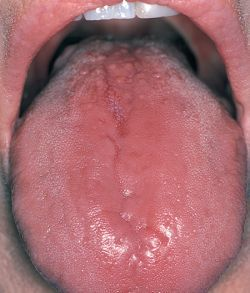 glossitis images