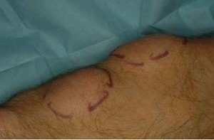 Images of Lipoma