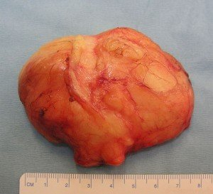 Photos of Lipoma