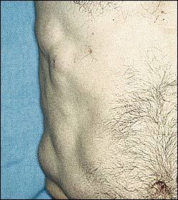 Pictures of Lipoma