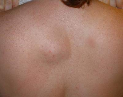 Picture 1 - Lipoma