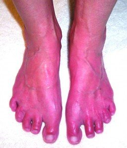 Images of Erythromelalgia