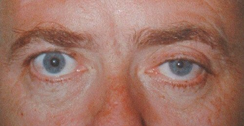 Horner's Syndrome Picture