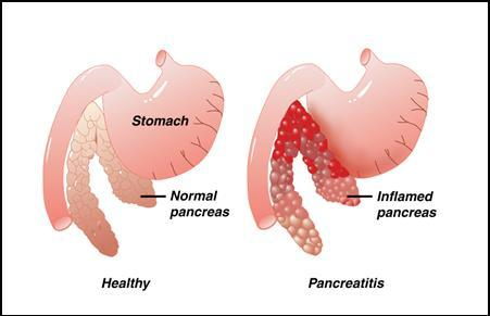 Picture 1     PancreatitisPancreas Affected By Alcohol