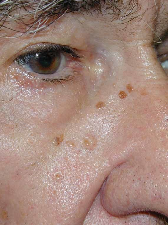 Photos of Sebaceous Hyperplasia