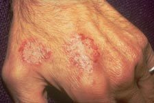 Images of Nummular Eczema