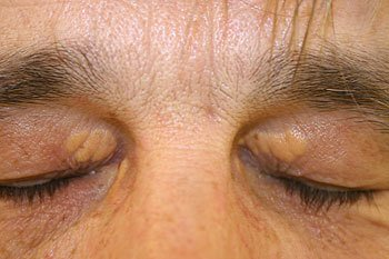Pictures of Xanthelasma
