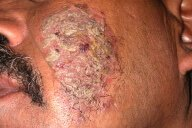 Photos of Pemphigus Vulgaris