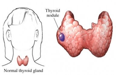 Pictures of Thyroid Nodules