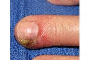 Picture of Hangnail Infection