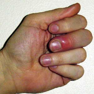 Image of Infected Hangnail