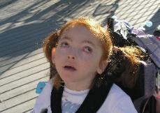 Image of Aicardi Syndrome