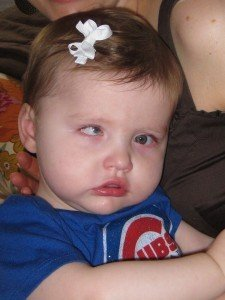 Picture of Aicardi Syndrome
