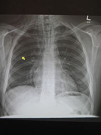 Picture of Pneumomediastinum