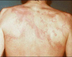Image of Erythema marginatum