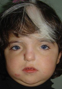 Picture of Waardenburg Syndrome