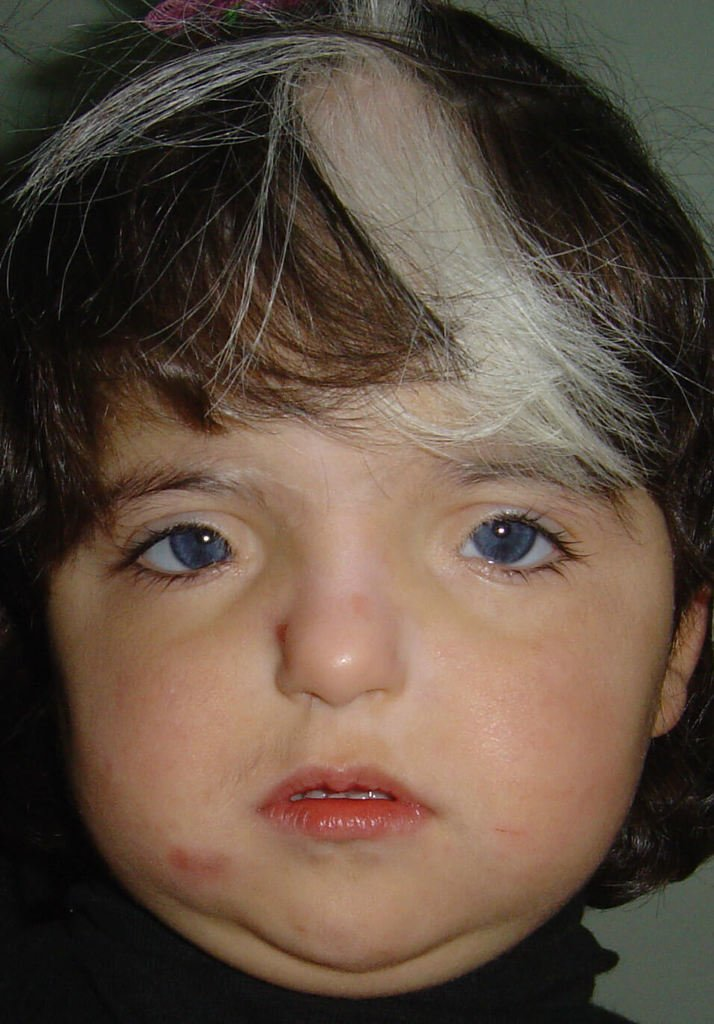 Waardenburg Syndrome Symptoms Pictures Causes And