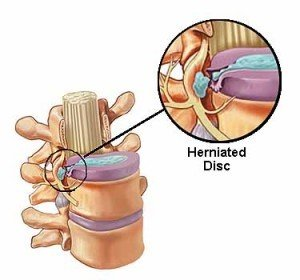 Image of Disc Herniation