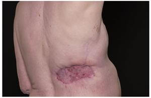 Image of Angiosarcoma