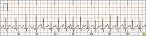 Picture of Atrial Tachycardia