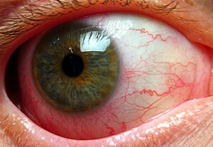 Picture of Iridocyclitis