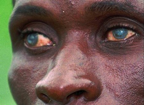 Picture of Onchocerciasis
