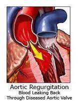 Picture of Aortic Regurgitation