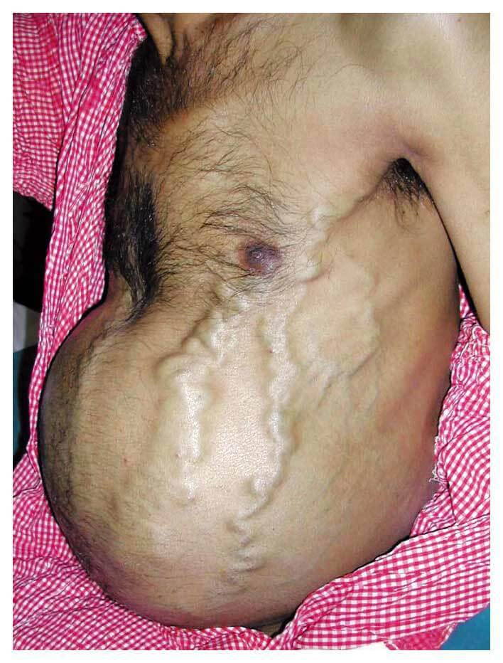 Picture of Budd-Chiari Syndrome