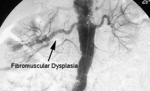 Picture of Fibromuscular Dysplasia