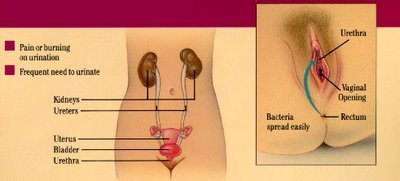 What to do for cystitis
