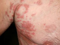 Picture of Hypereosinophilic Syndrome