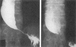 Picture of Achalasia