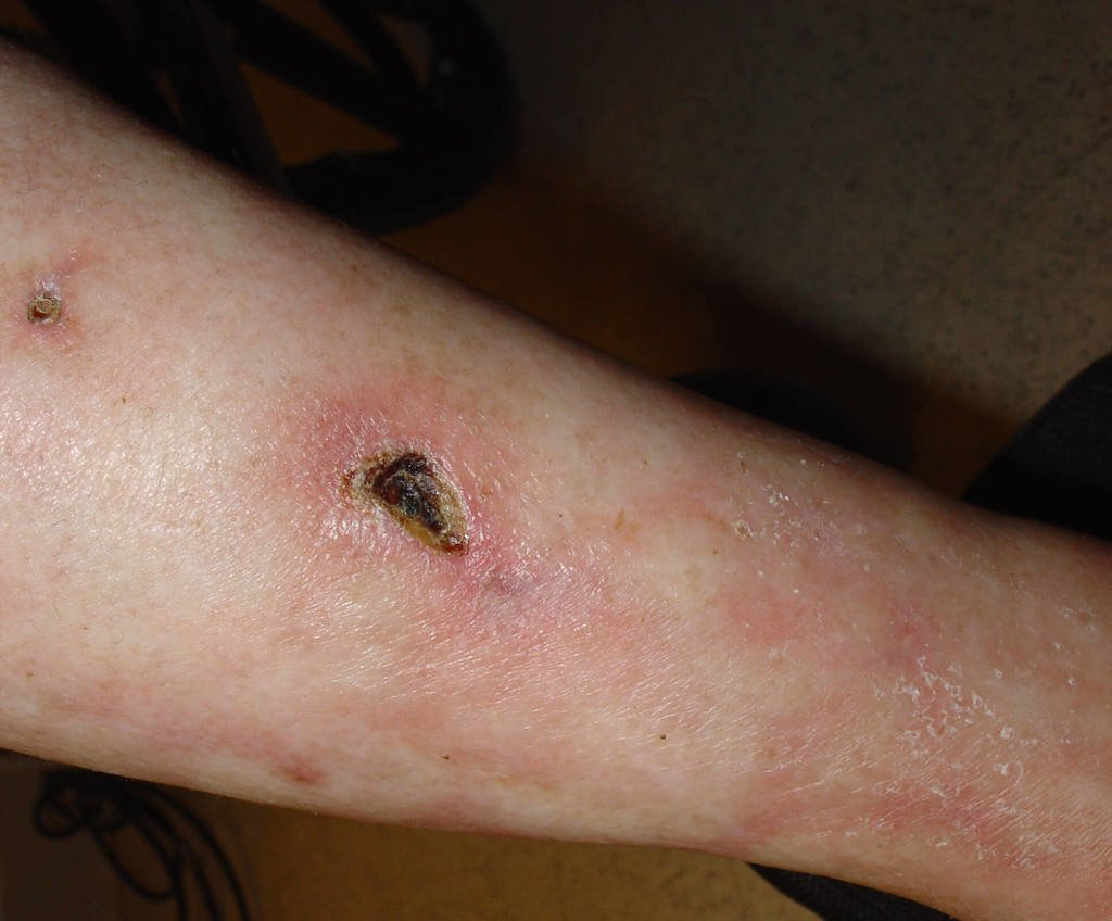 calciphylaxis symptoms pictures photos