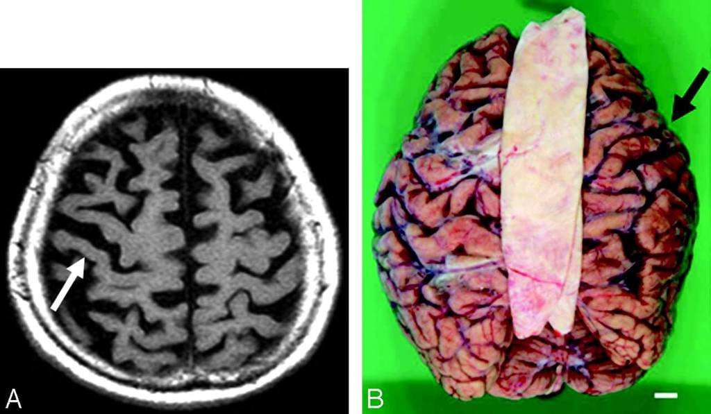Image of Corticobasal Degeneration
