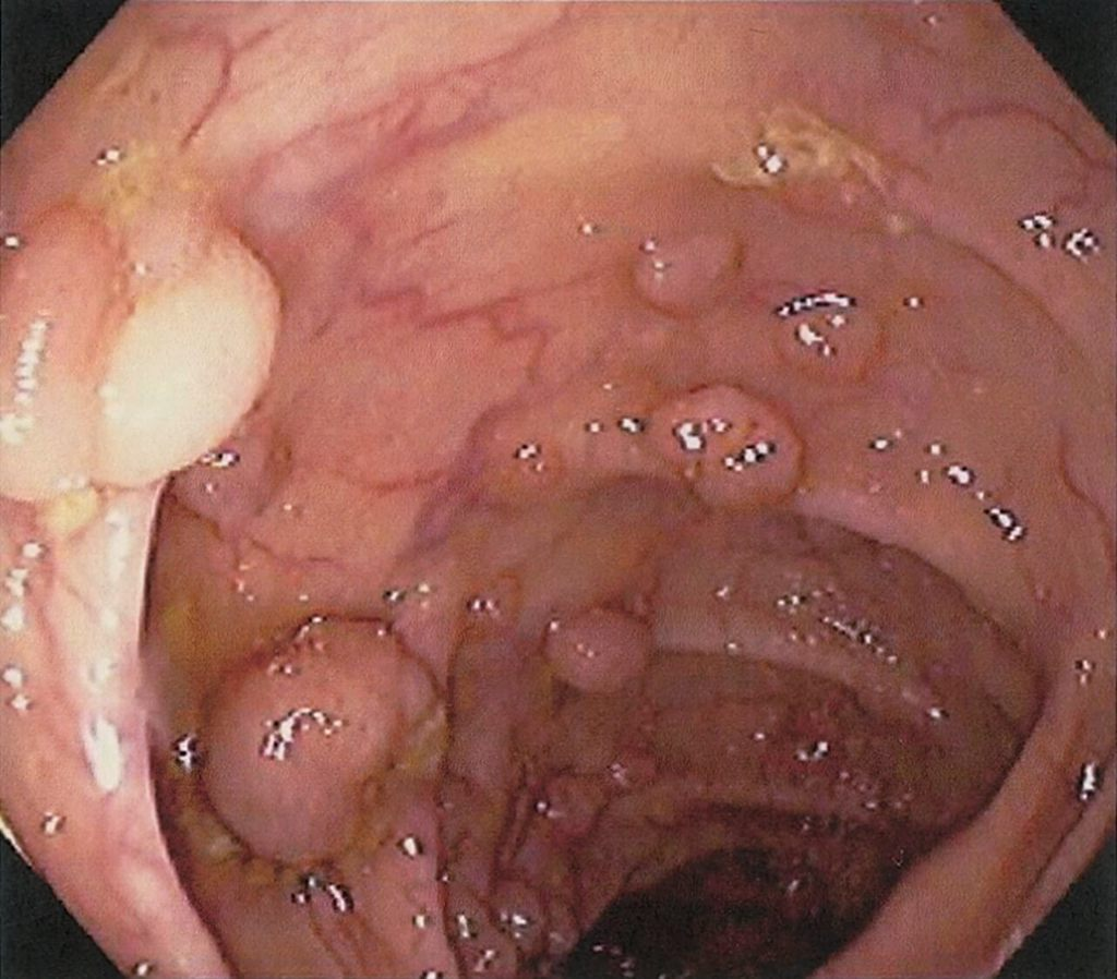 Familial colonic polyposis definition of marriage