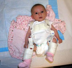 Picture of Hip Dysplasia in Infants