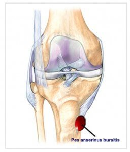 Picture of Pes Anserine Bursitis