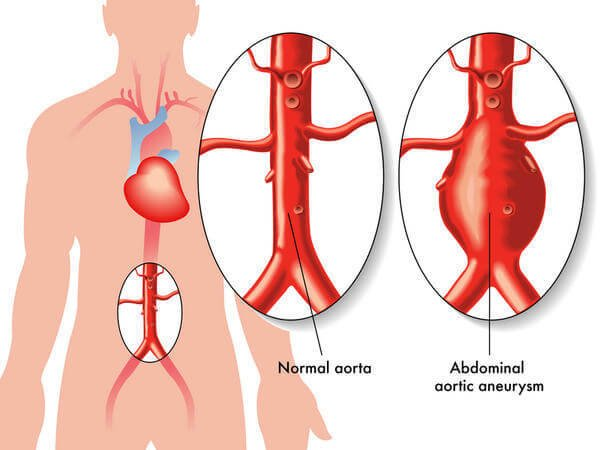 Picture of Abdominal aortic aneurysm