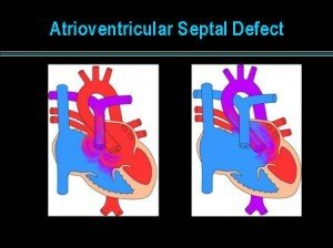 Picture of Atrioventricular Septal Defect