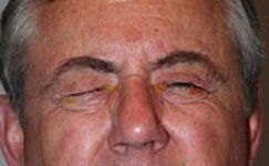 Image of Blepharospasm