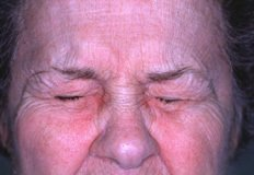 Picture of Blepharospasm