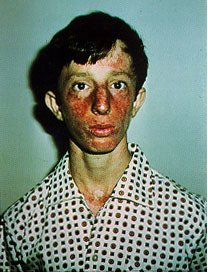 Picture of Bloom Syndrome